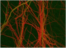 Trichodermaatroviride (red) growing along the hyphae of a host fungus (green).  (Photo by VerenaSeidl, TU Vienna and Nick Read, Univ. of Edinburgh)
